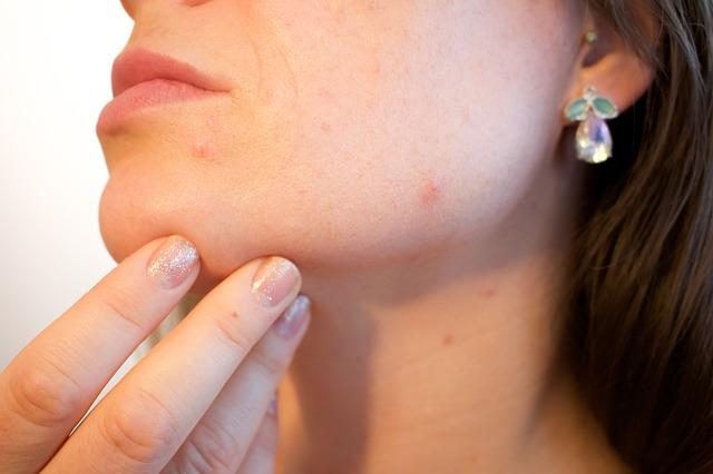 痒くない湿疹がお腹や腕にできる4大原因と対処法!赤い斑点やポツポツの正体とは?