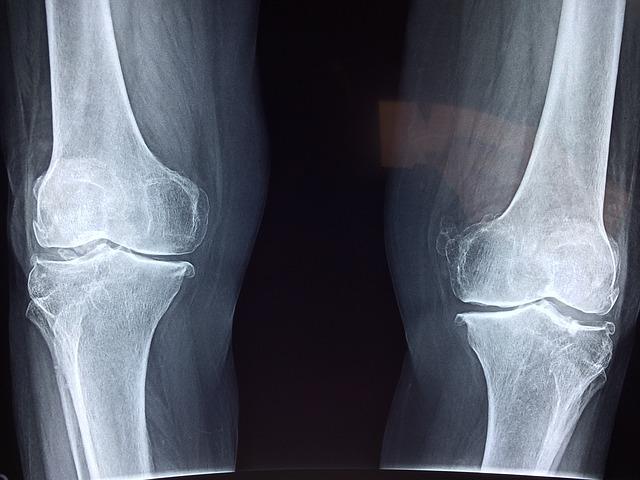 骨折か打撲か捻挫の見分け方|症状の違いとチェックすべきポイントとは?